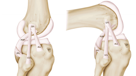 Antero Lateral Ligament