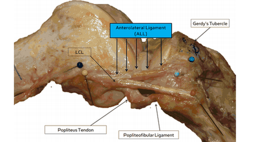 AnteroLateral Ligament